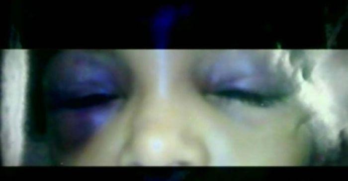 Marcas no rosto da criança torturada pela Procuradora.